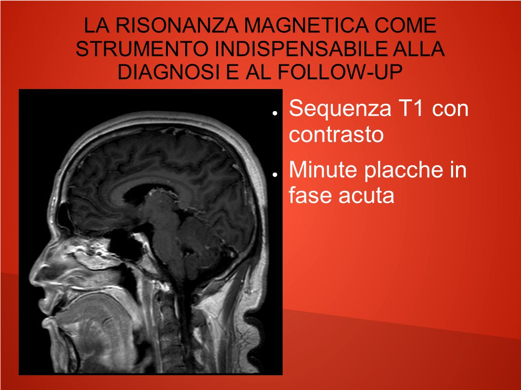 LA RISONANZA MAGNETICA COME STRUMENTO INDISPENSABILE ALLA DIAGNOSI E AL FOLLOW-UP ● Sequenza T1 con contrasto ● Minute placche in fase acuta