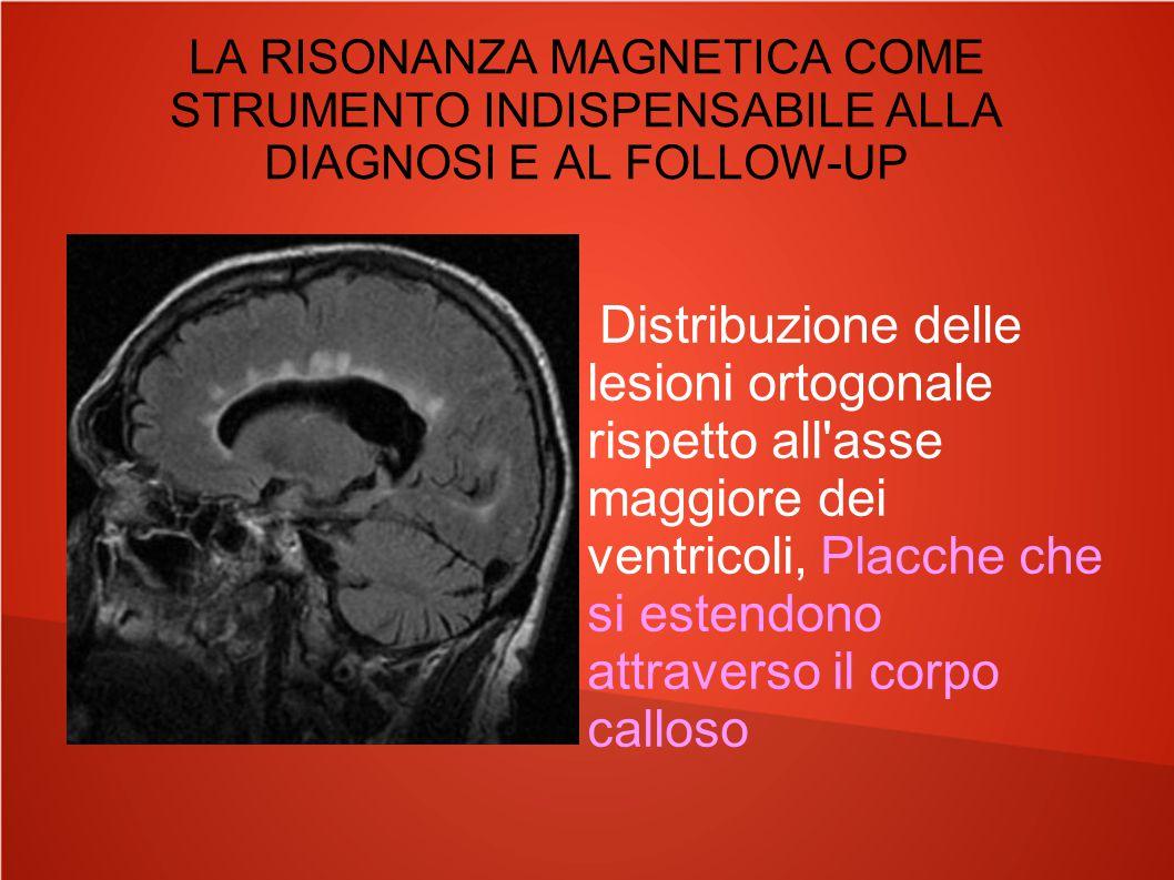 LA RISONANZA MAGNETICA COME STRUMENTO INDISPENSABILE ALLA DIAGNOSI E AL FOLLOW-UP Distribuzione delle lesioni ortogonale rispetto all'asse maggiore de