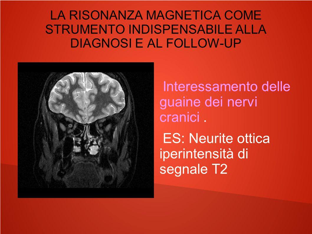 LA RISONANZA MAGNETICA COME STRUMENTO INDISPENSABILE ALLA DIAGNOSI E AL FOLLOW-UP Interessamento delle guaine dei nervi cranici. ES: Neurite ottica ip