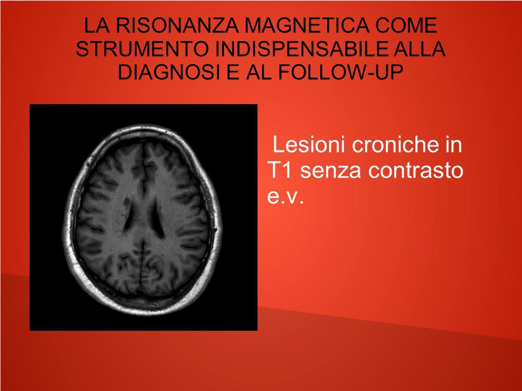 LA RISONANZA MAGNETICA COME STRUMENTO INDISPENSABILE ALLA DIAGNOSI E AL FOLLOW-UP Lesioni croniche in T1 senza contrasto e.v.