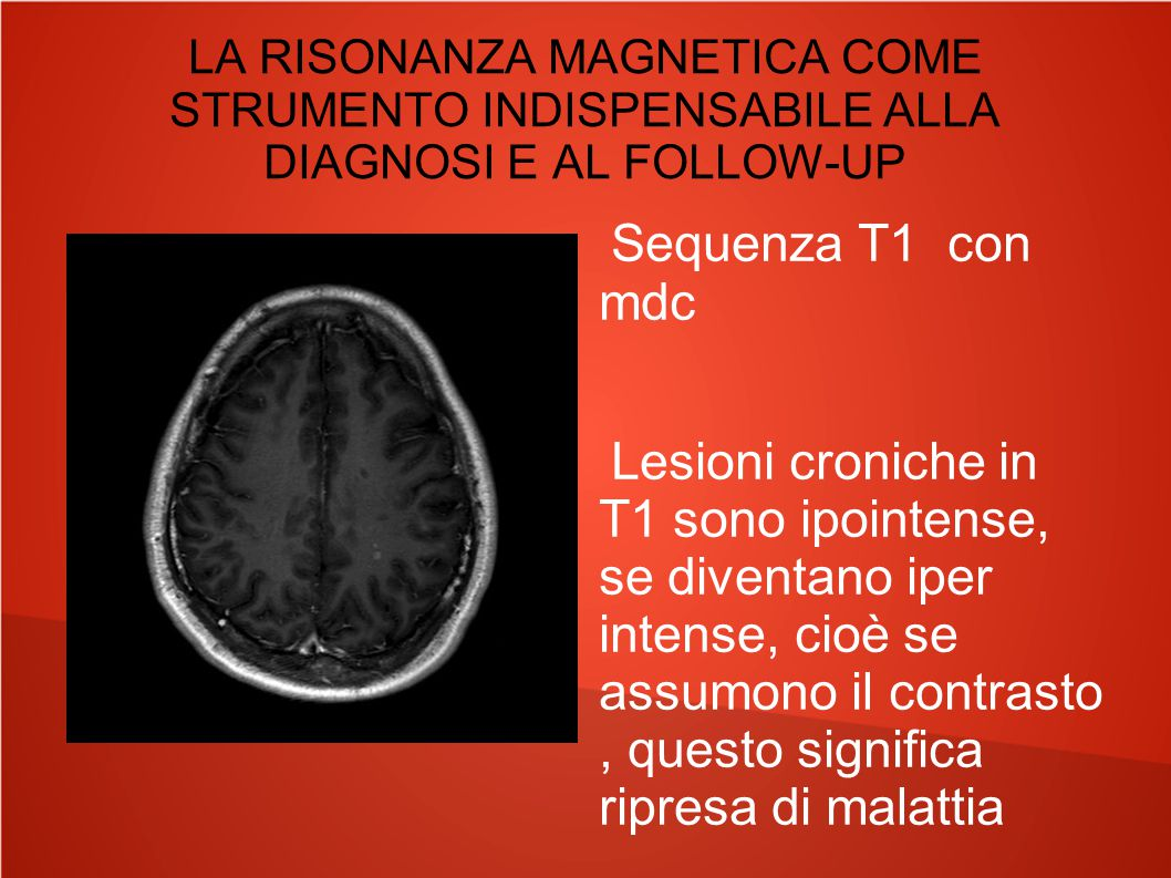 LA RISONANZA MAGNETICA COME STRUMENTO INDISPENSABILE ALLA DIAGNOSI E AL FOLLOW-UP Sequenza T1 con mdc Lesioni croniche in T1 sono ipointense, se diven