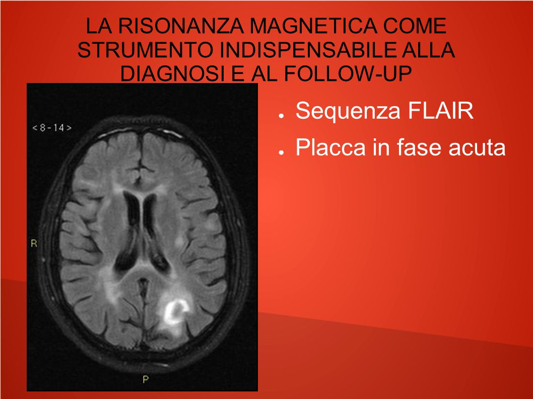 LA RISONANZA MAGNETICA COME STRUMENTO INDISPENSABILE ALLA DIAGNOSI E AL FOLLOW-UP ● Sequenza FLAIR ● Placca in fase acuta