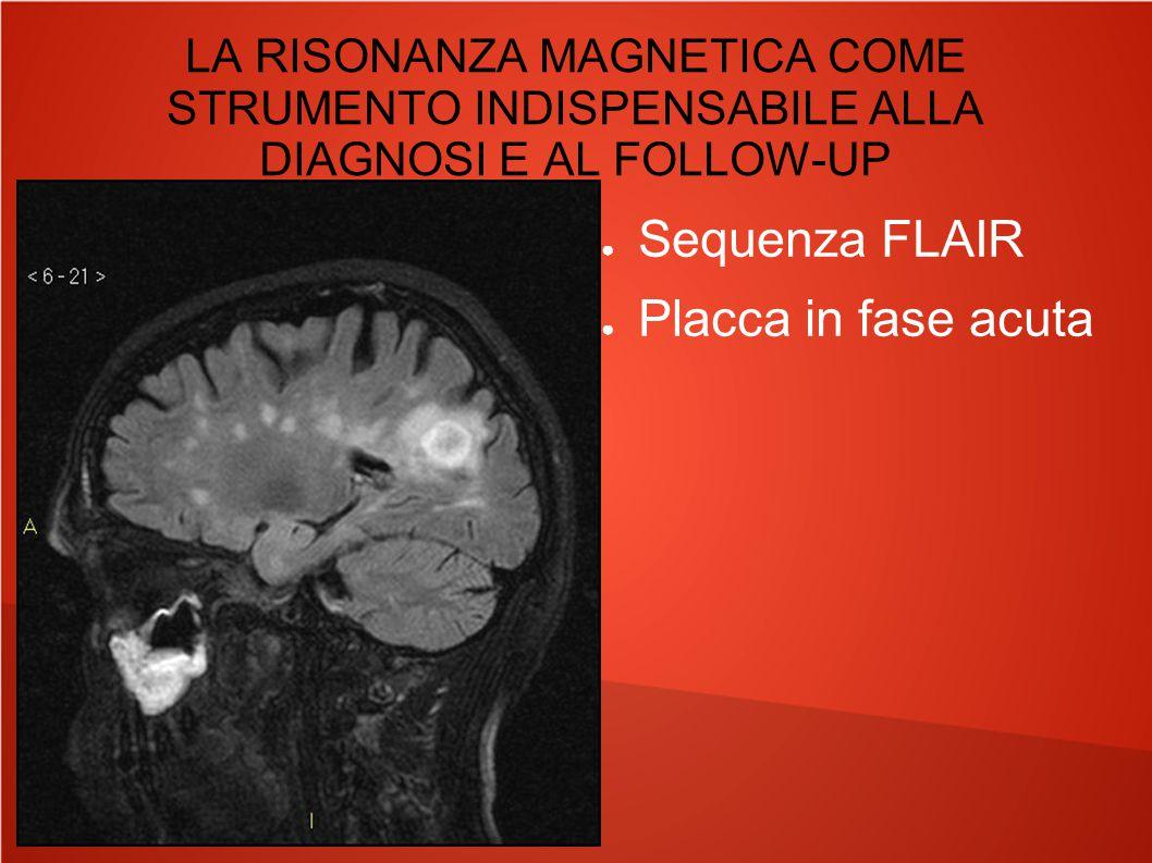 LA RISONANZA MAGNETICA COME STRUMENTO INDISPENSABILE ALLA DIAGNOSI E AL FOLLOW-UP ● Sequenza T2 ● Placca in fase acuta al corpo calloso