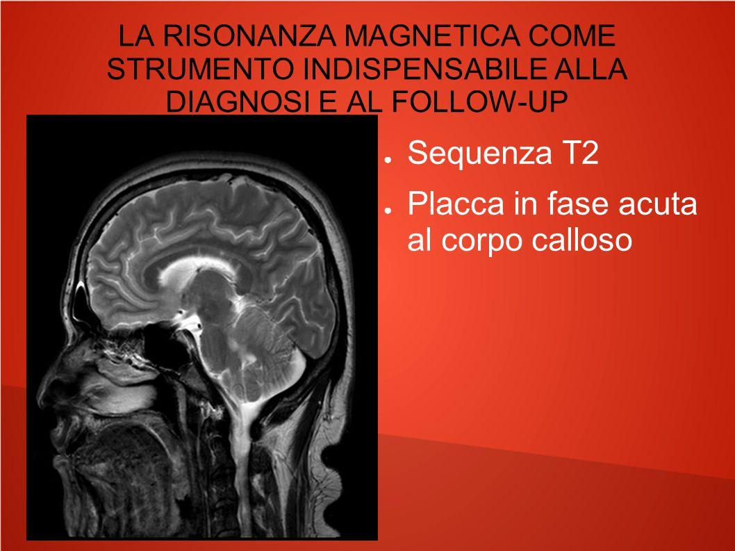 LA RISONANZA MAGNETICA COME STRUMENTO INDISPENSABILE ALLA DIAGNOSI E AL FOLLOW-UP ● Sequenza T2 ● Placche in fase acuta