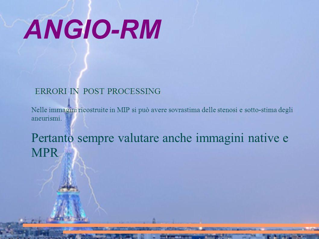 ANGIO-RM ERRORI IN POST PROCESSING ERRORI IN POST PROCESSING Nelle immagini ricostruite in MIP si può avere sovrastima delle stenosi e sotto-stima deg
