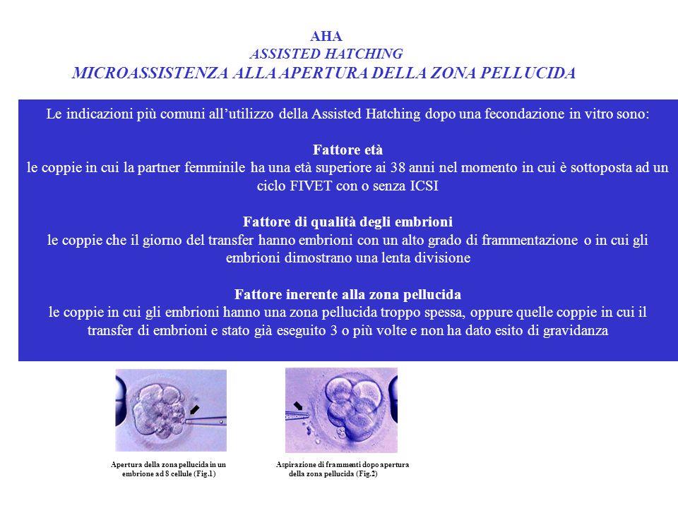 Le indicazioni più comuni all'utilizzo della Assisted Hatching dopo una fecondazione in vitro sono: Fattore età le coppie in cui la partner femminile ha una età superiore ai 38 anni nel momento in cui è sottoposta ad un ciclo FIVET con o senza ICSI Fattore di qualità degli embrioni le coppie che il giorno del transfer hanno embrioni con un alto grado di frammentazione o in cui gli embrioni dimostrano una lenta divisione Fattore inerente alla zona pellucida le coppie in cui gli embrioni hanno una zona pellucida troppo spessa, oppure quelle coppie in cui il transfer di embrioni e stato già eseguito 3 o più volte e non ha dato esito di gravidanza AHA ASSISTED HATCHING MICROASSISTENZA ALLA APERTURA DELLA ZONA PELLUCIDA Apertura della zona pellucida in un Aspirazione di frammenti dopo apertura embrione ad 8 cellule (Fig.1) della zona pellucida (Fig.2)