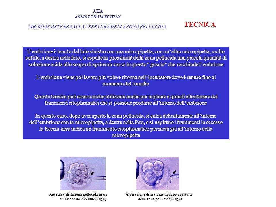 AHA ASSISTED HATCHING MICROASSISTENZA ALLA APERTURA DELLA ZONA PELLUCIDA TECNICA L'embrione è tenuto dal lato sinistro con una micropipetta, con un'altra micropipetta, molto sottile, a destra nelle foto, si espelle in prossimità della zona pellucida una piccola quantità di soluzione acida allo scopo di aprire un varco in questo guscio che racchiude l'embrione L'embrione viene poi lavato più volte e ritorna nell'incubatore dove è tenuto fino al momento del transfer Questa tecnica può essere anche utilizzata anche per aspirare e quindi allontanare dei frammenti citoplasmatici che si possono produrre all'interno dell'embrione In questo caso, dopo aver aperto la zona pellucida, si entra delicatamente all'interno dell'embrione con la micropipetta, a destra nella foto, e si aspirano i frammenti in eccesso la freccia nera indica un frammento citoplasmatico per metà già all'interno della micropipetta