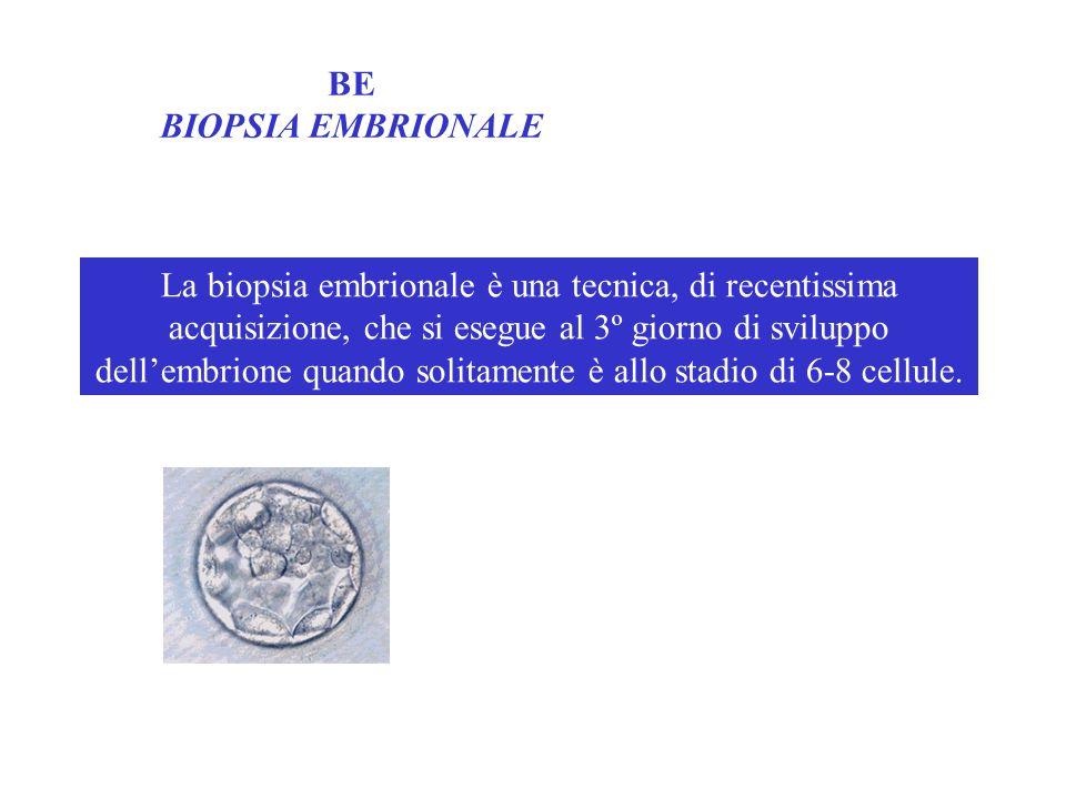 BE BIOPSIA EMBRIONALE La biopsia embrionale è una tecnica, di recentissima acquisizione, che si esegue al 3º giorno di sviluppo dell'embrione quando solitamente è allo stadio di 6-8 cellule.