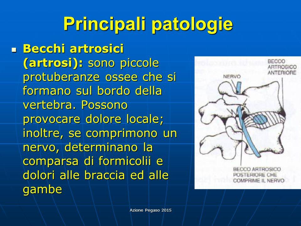 Azione Pegaso 2015 Principali patologie Becchi artrosici (artrosi): sono piccole protuberanze ossee che si formano sul bordo della vertebra. Possono p
