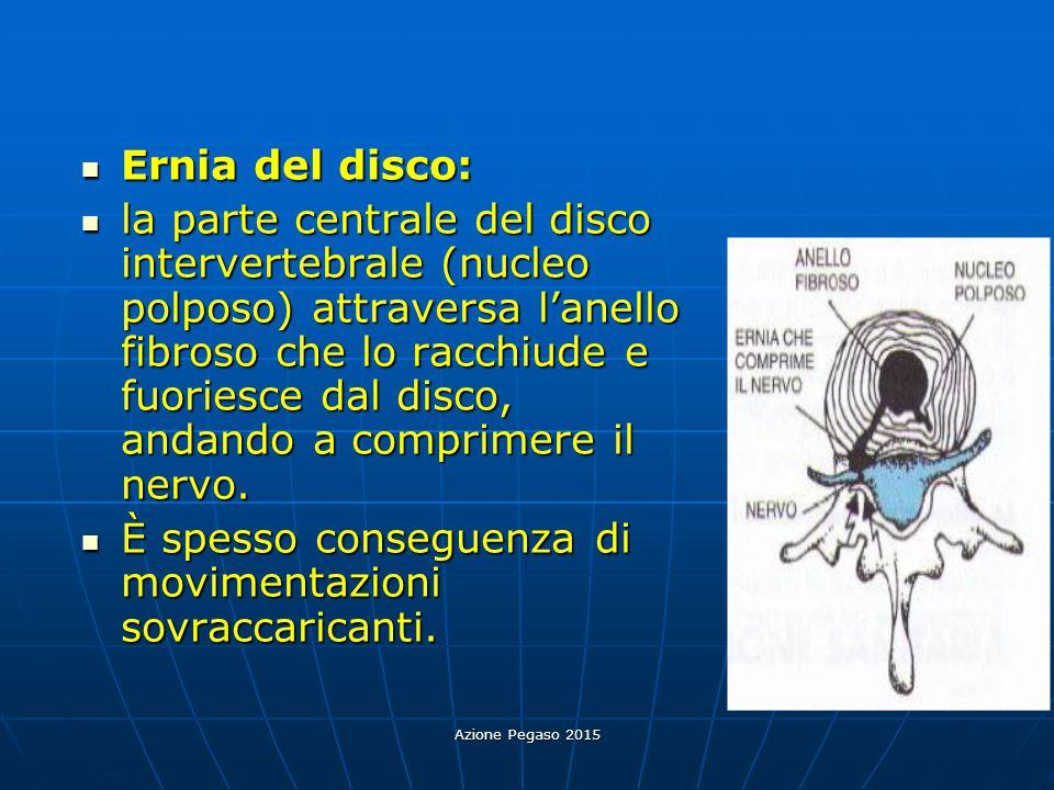 Azione Pegaso 2015 Ernia del disco: Ernia del disco: la parte centrale del disco intervertebrale (nucleo polposo) attraversa l'anello fibroso che lo r