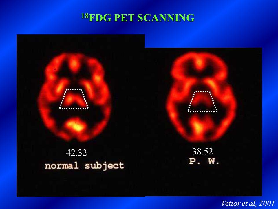 18 FDG PET SCANNING 42.32 38.52 Vettor et al, 2001