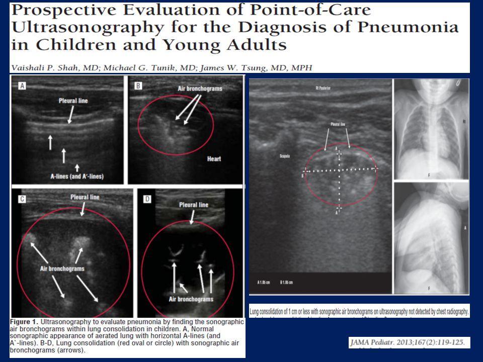 E' sempre necessario eseguire la radiografia del torace per porre diagnosi di CAP.