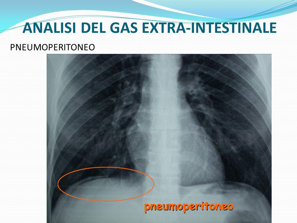 ANALISI DEL GAS EXTRA-INTESTINALE PNEUMOPERITONEO