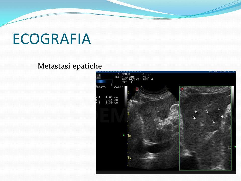Metastasi epatiche