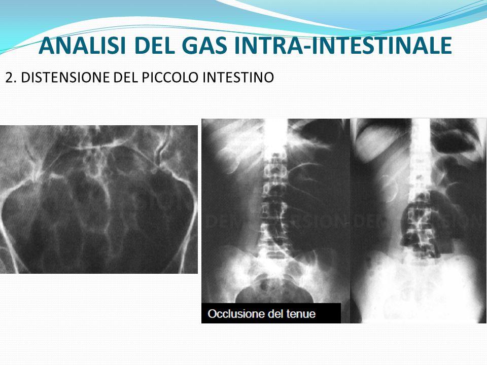 ANALISI DEL GAS INTRA-INTESTINALE 2.