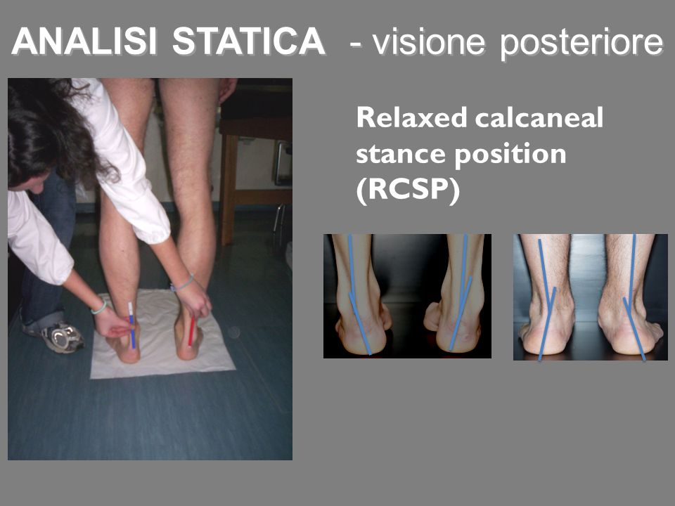 Relaxed calcaneal stance position (RCSP) ANALISI STATICA - visione posteriore