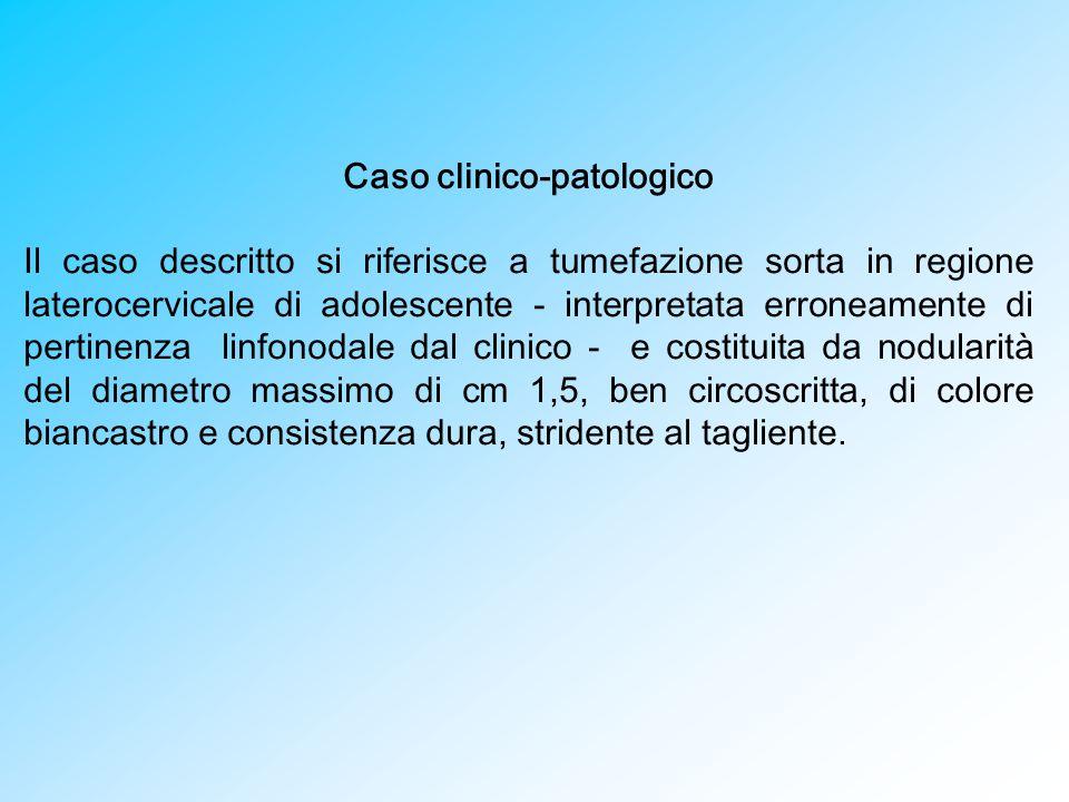Caso clinico-patologico Il caso descritto si riferisce a tumefazione sorta in regione laterocervicale di adolescente - interpretata erroneamente di pe