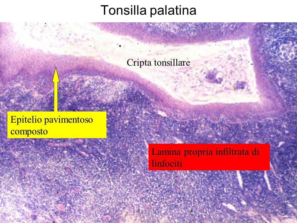 Tonsilla palatina Cripta tonsillare Epitelio pavimentoso composto Lamina propria infiltrata di linfociti