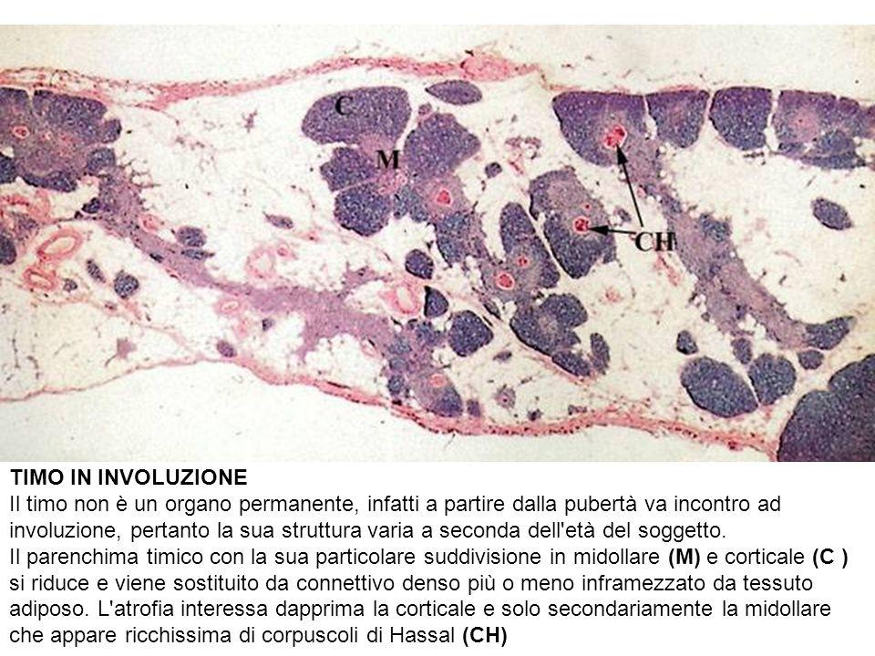 TIMO IN INVOLUZIONE Il timo non è un organo permanente, infatti a partire dalla pubertà va incontro ad involuzione, pertanto la sua struttura varia a