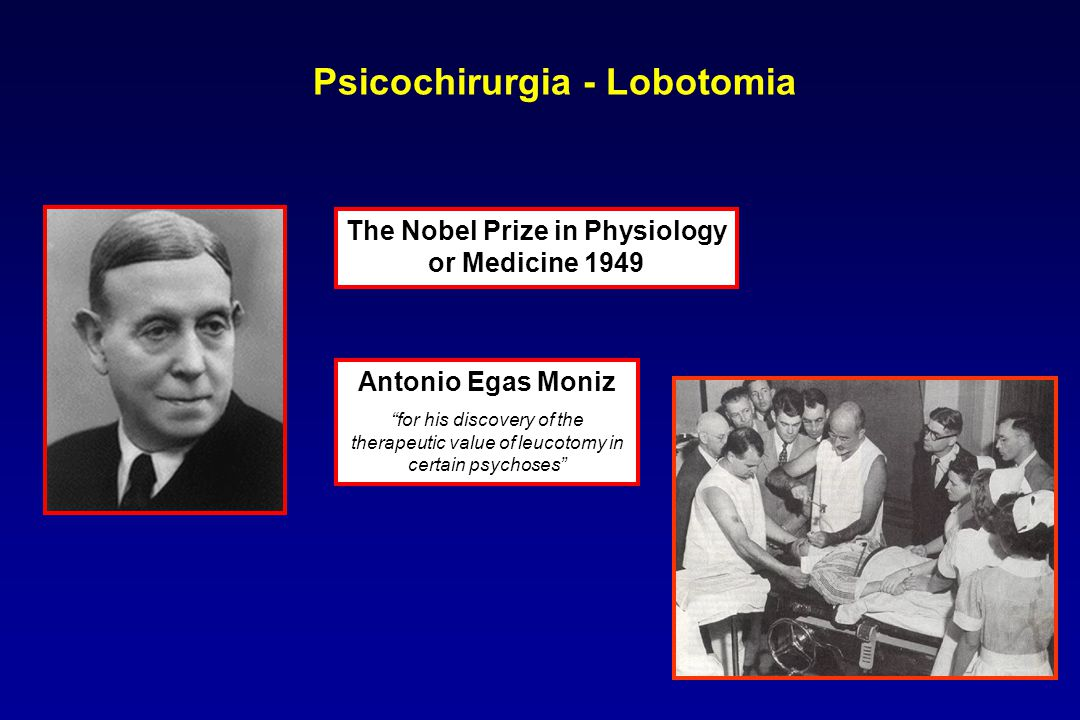 "Antonio Egas Moniz ""for his discovery of the therapeutic value of leucotomy in certain psychoses"" The Nobel Prize in Physiology or Medicine 1949 Psico"