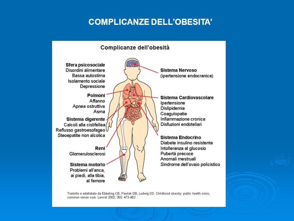 COMPLICANZE DELL'OBESITA'