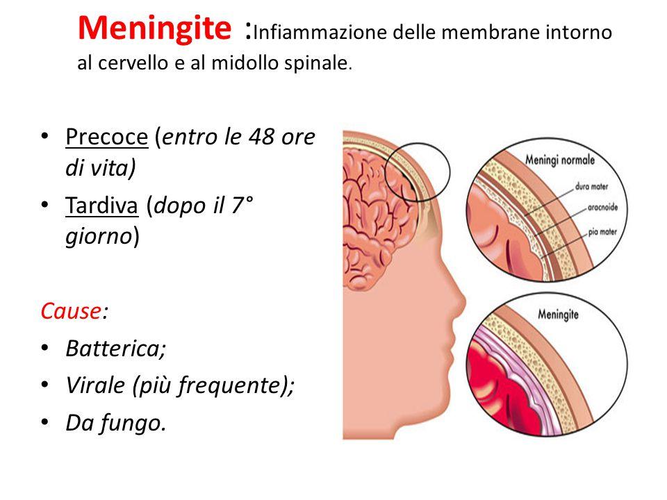 Meningite : Infiammazione delle membrane intorno al cervello e al midollo spinale. Precoce (entro le 48 ore di vita) Tardiva (dopo il 7° giorno) Cause
