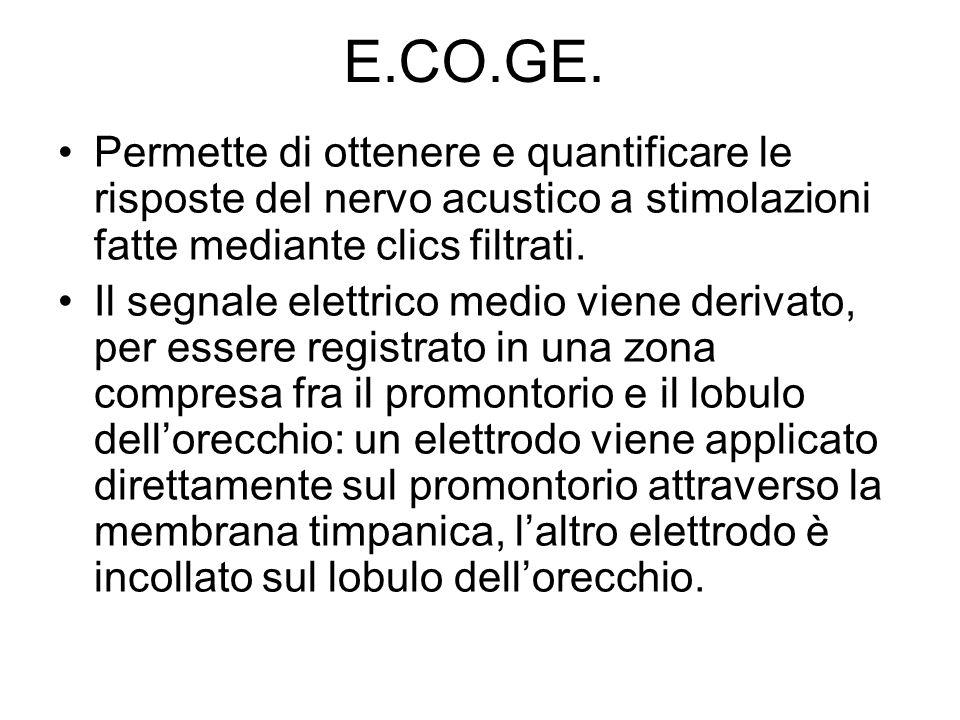 E.CO.GE. Permette di ottenere e quantificare le risposte del nervo acustico a stimolazioni fatte mediante clics filtrati. Il segnale elettrico medio v