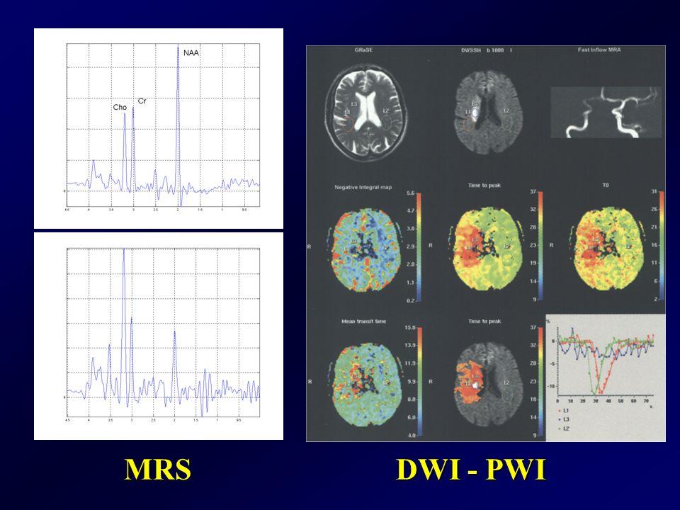 MRS DWI - PWI