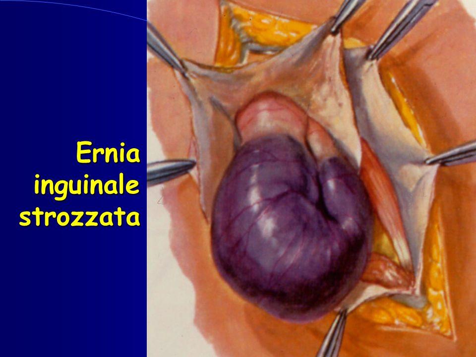 Ernia inguinale strozzata inguinale strozzata
