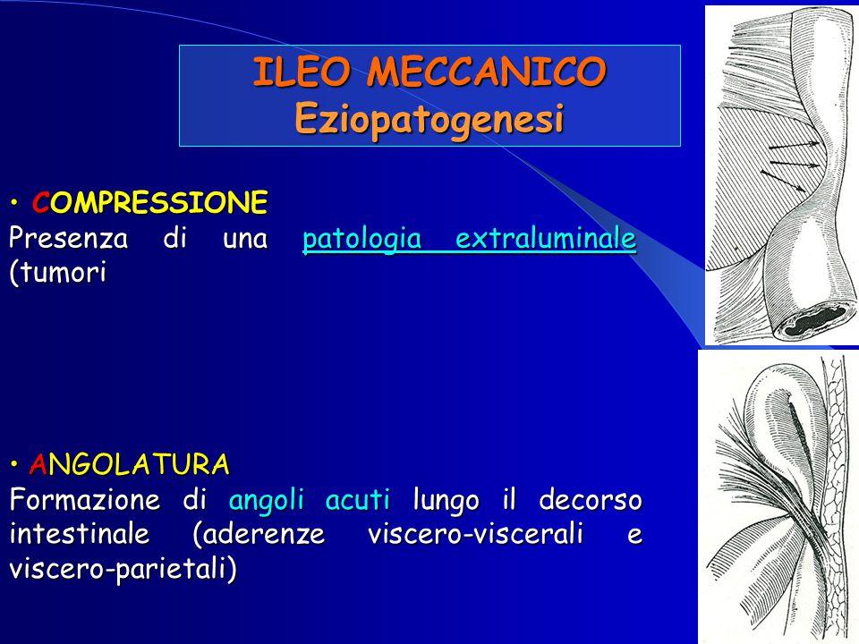 ILEO MECCANICO Eziopatogenesi COMPRESSIONE COMPRESSIONE Presenza di una patologia extraluminale (tumori ANGOLATURA ANGOLATURA Formazione di angoli acu