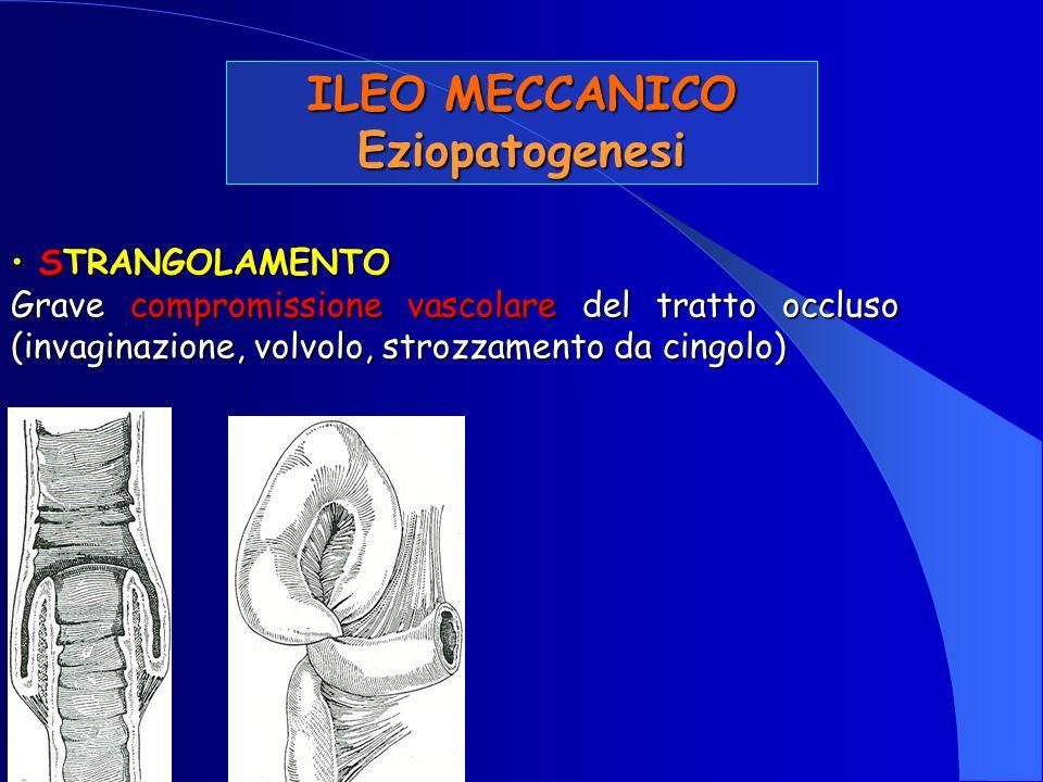 STRANGOLAMENTO STRANGOLAMENTO Grave compromissione vascolare del tratto occluso (invaginazione, volvolo, strozzamento da cingolo) ILEO MECCANICO Eziop
