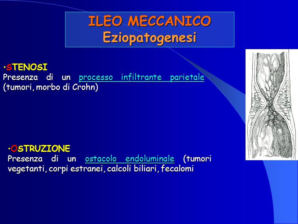 Eziopatogenesi OSTRUZIONEOSTRUZIONE Presenza di un ostacolo endoluminale (tumori vegetanti, corpi estranei, calcoli biliari, fecalomi STENOSISTENOSI P
