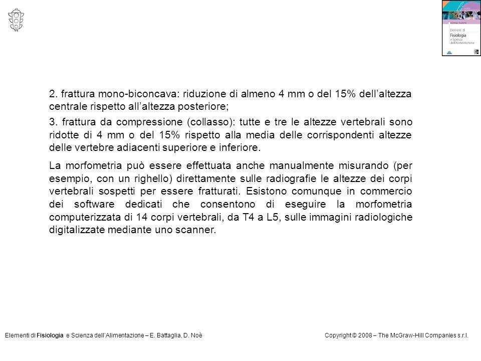 Elementi di Fisiologia e Scienza dell'Alimentazione – E. Battaglia, D. NoèCopyright © 2008 – The McGraw-Hill Companies s.r.l. 2. frattura mono-biconca