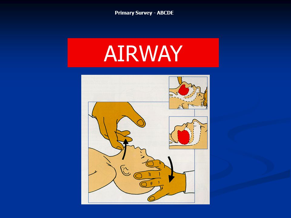 AIRWAY Primary Survey - ABCDE