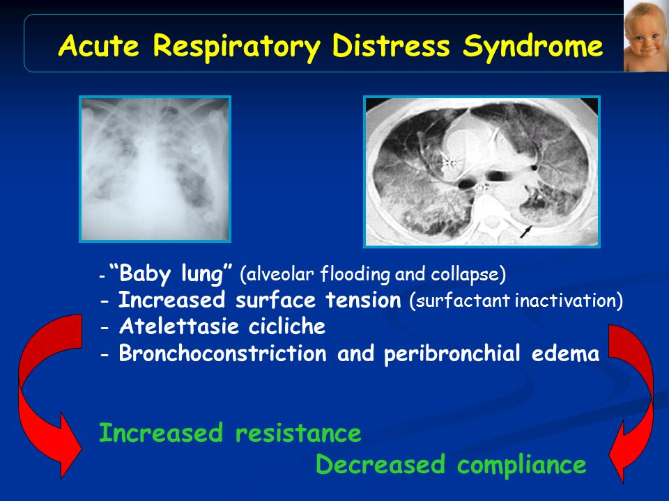 "- ""Baby lung"" (alveolar flooding and collapse) - Increased surface tension (surfactant inactivation) - Atelettasie cicliche - Bronchoconstriction and"