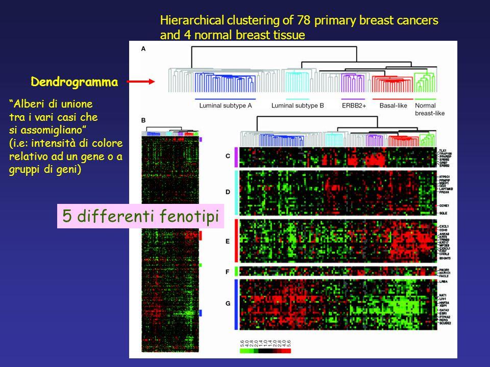 """Hierarchical clustering of 78 primary breast cancers and 4 normal breast tissue Dendrogramma """"Alberi di unione tra i vari casi che si assomigliano"""" (i"""
