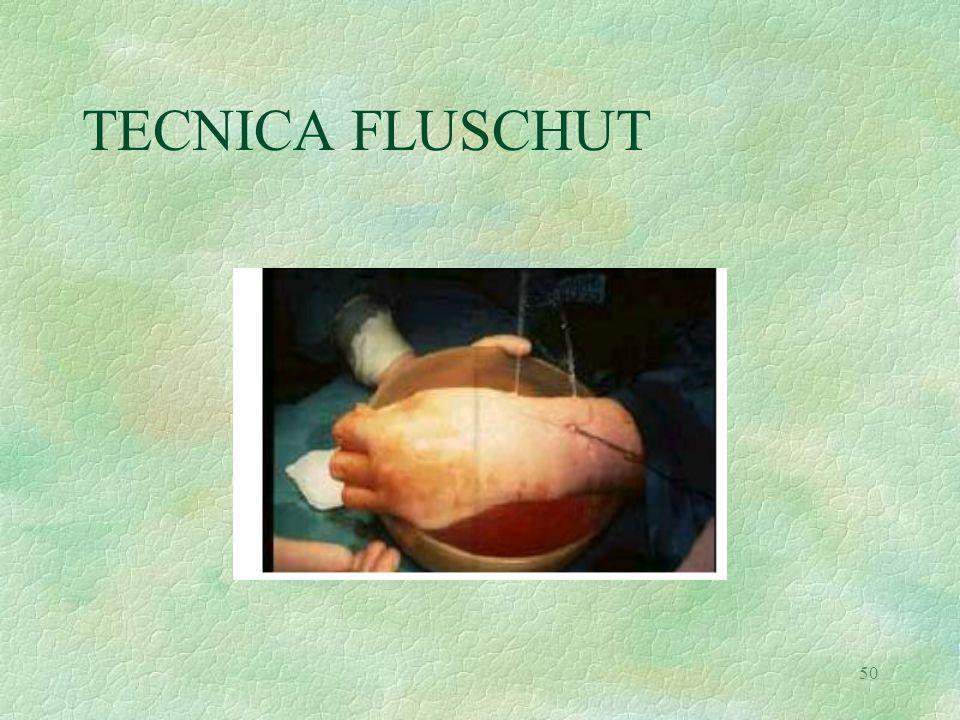 50 TECNICA FLUSCHUT