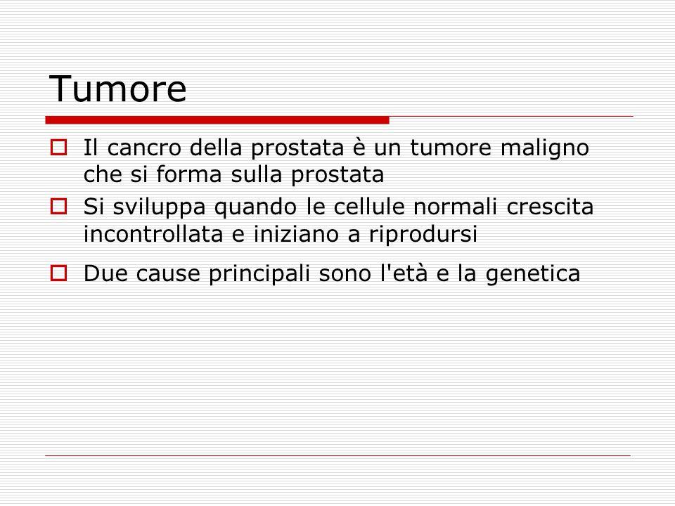 Tumore  Il cancro della prostata è un tumore maligno che si forma sulla prostata  Si sviluppa quando le cellule normali crescita incontrollata e iniziano a riprodursi  Due cause principali sono l età e la genetica