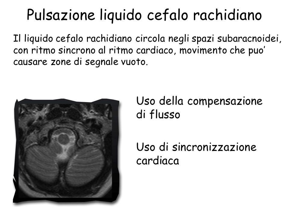 Pulsazione liquido cefalo rachidiano Il liquido cefalo rachidiano circola negli spazi subaracnoidei, con ritmo sincrono al ritmo cardiaco, movimento che puo' causare zone di segnale vuoto.