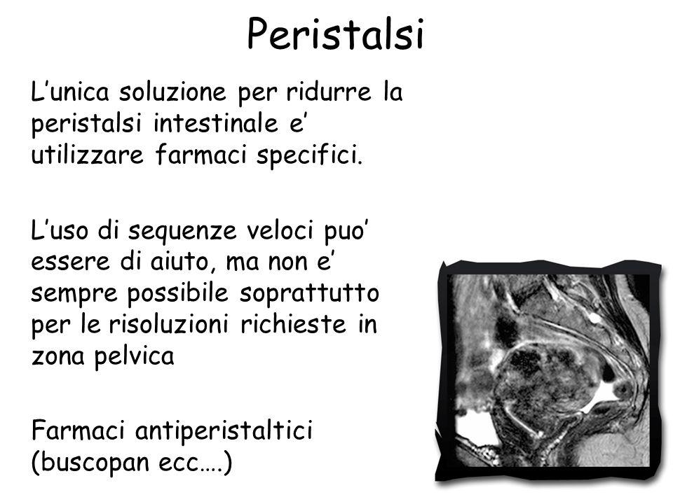 Peristalsi L'unica soluzione per ridurre la peristalsi intestinale e' utilizzare farmaci specifici.