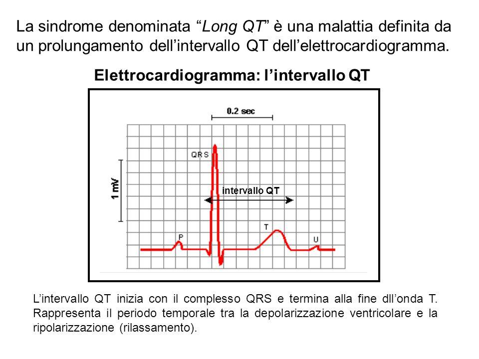 """La sindrome denominata """"Long QT"""" è una malattia definita da un prolungamento dell'intervallo QT dell'elettrocardiogramma. L'intervallo QT inizia con i"""