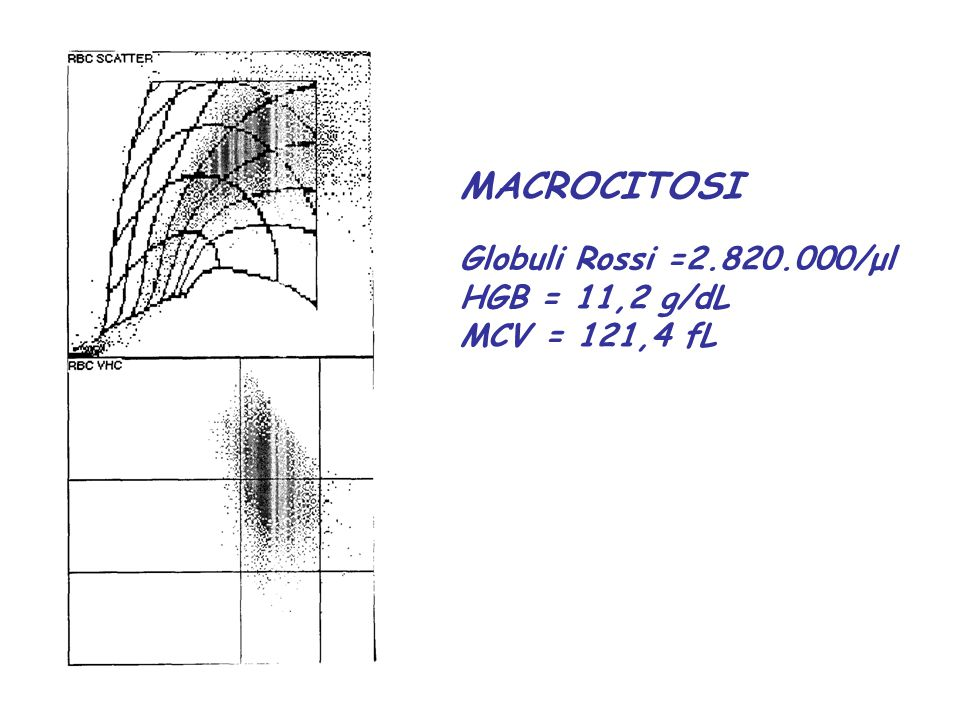 MACROCITOSI Globuli Rossi =2.820.000/μl HGB = 11,2 g/dL MCV = 121,4 fL
