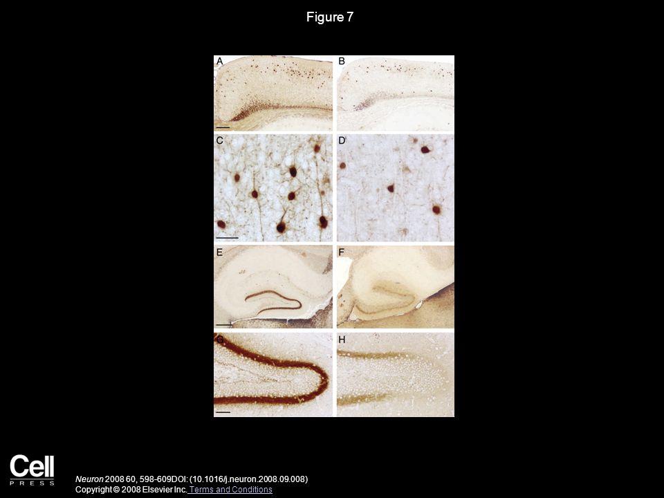 Figure 8 Neuron 2008 60, 598-609DOI: (10.1016/j.neuron.2008.09.008) Copyright © 2008 Elsevier Inc.