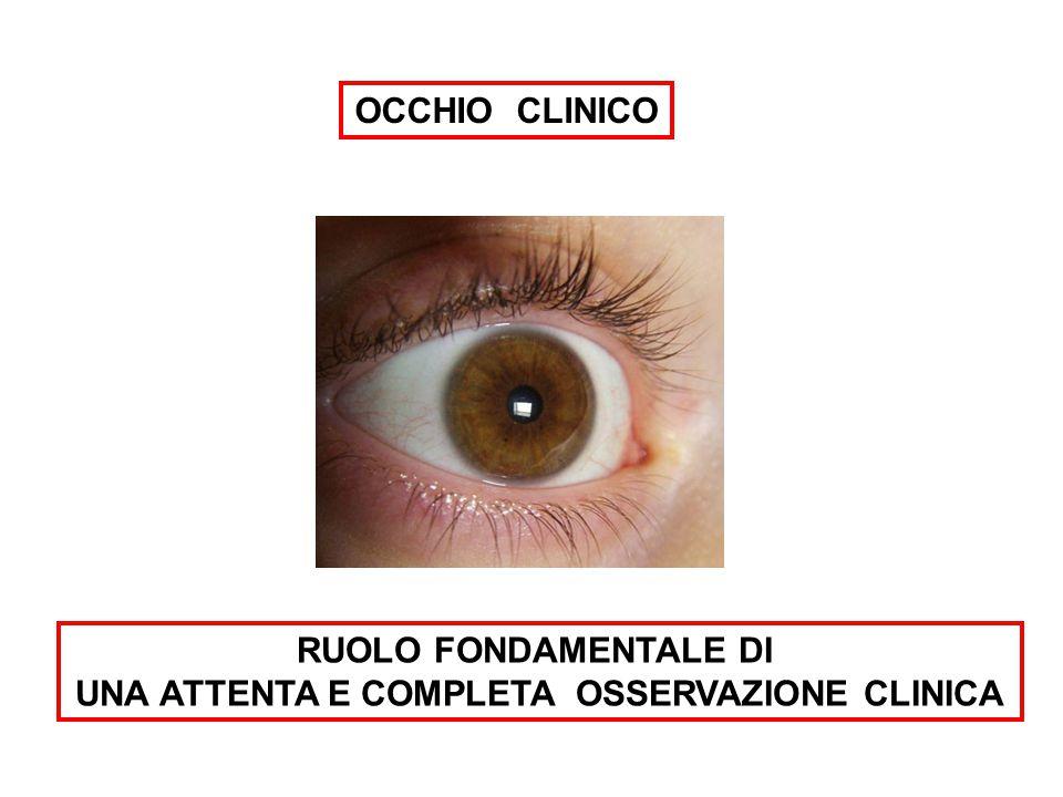 RUOLO FONDAMENTALE DI UNA ATTENTA E COMPLETA OSSERVAZIONE CLINICA OCCHIO CLINICO