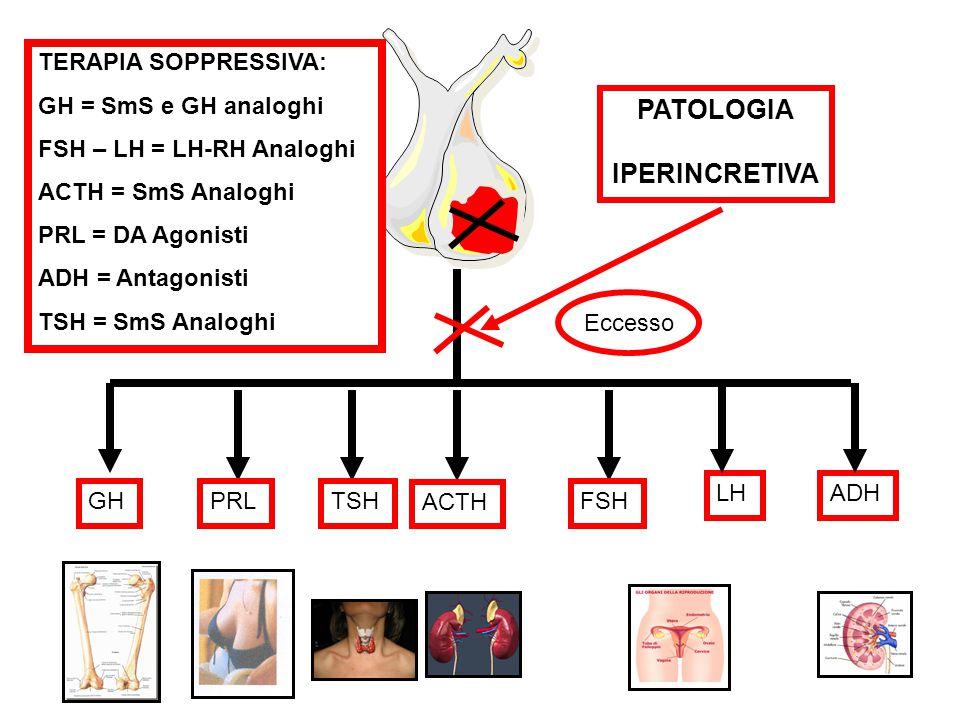 GHPRLTSH ACTH FSH LHADH PATOLOGIA IPERINCRETIVA Eccesso TERAPIA SOPPRESSIVA: GH = SmS e GH analoghi FSH – LH = LH-RH Analoghi ACTH = SmS Analoghi PRL = DA Agonisti ADH = Antagonisti TSH = SmS Analoghi