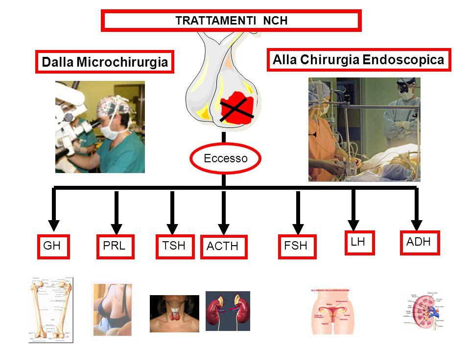 GHPRLTSH ACTH FSH LHADH Alla Chirurgia Endoscopica Eccesso TRATTAMENTI NCH Dalla Microchirurgia