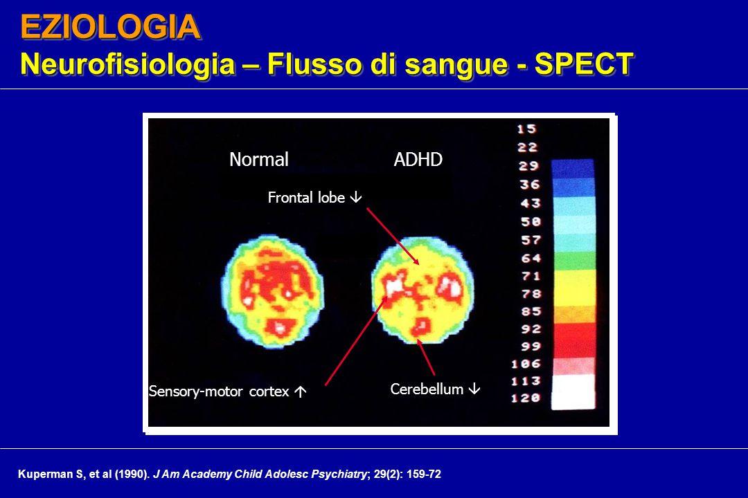 EZIOLOGIA Neurofisiologia – Flusso di sangue - SPECT Frontal lobe  Cerebellum  Sensory-motor cortex  NormalADHD Kuperman S, et al (1990).