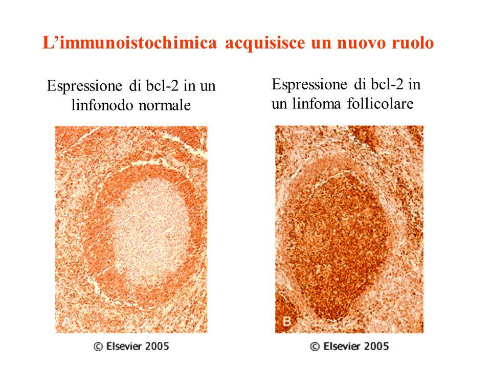 L'immunoistochimica acquisisce un nuovo ruolo Espressione di bcl-2 in un linfonodo normale Espressione di bcl-2 in un linfoma follicolare