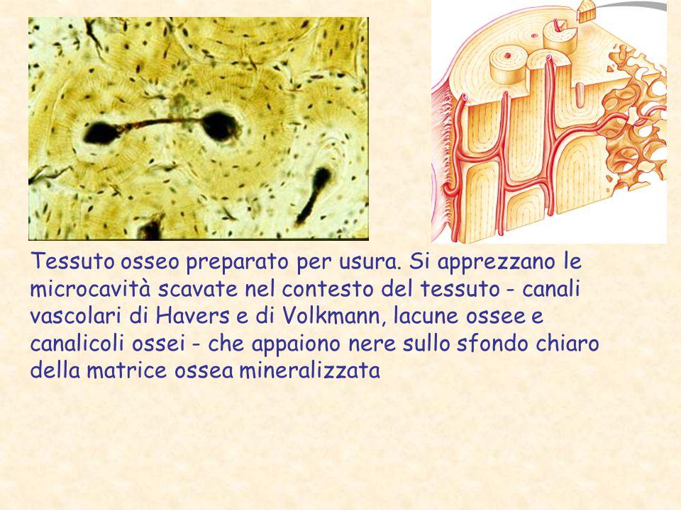 Tessuto osseo preparato per usura. Si apprezzano le microcavità scavate nel contesto del tessuto - canali vascolari di Havers e di Volkmann, lacune os
