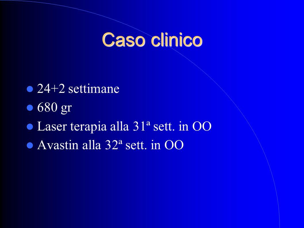 Caso clinico 24+2 settimane 680 gr Laser terapia alla 31ª sett. in OO Avastin alla 32ª sett. in OO